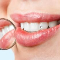 Cristal smile tandkristal